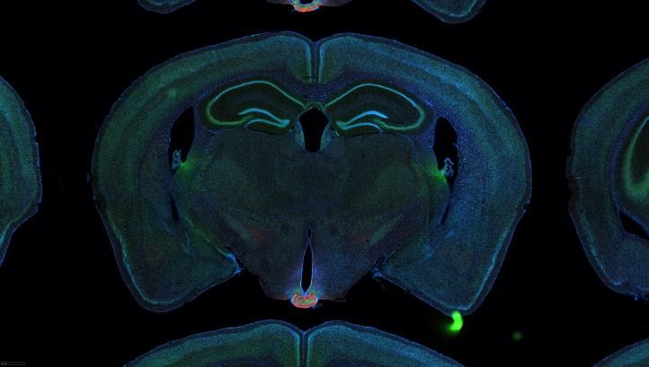Image: Serial two-photon tomography of the whole mouse brain.