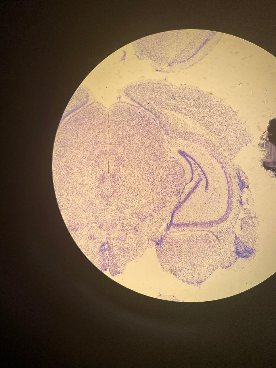 Image: Microscopy of brain tissue. Credit: Merrin Monteith